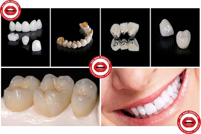 các loại răng sứ thường dùng
