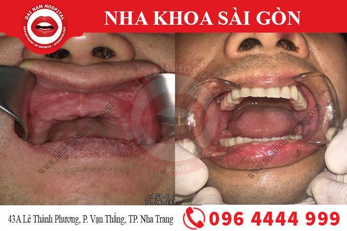 cay-ghep-implant1