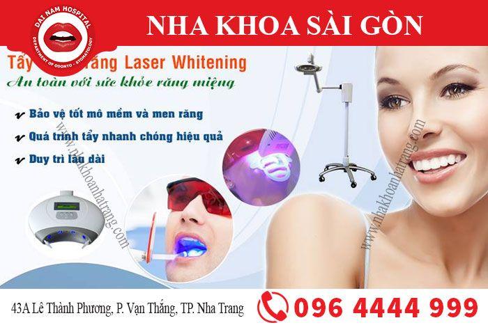 tẩy trắng răng bằng công nghệ Laser Whitening