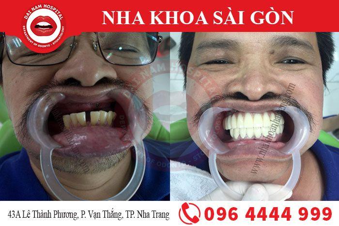 Sau khi thực hiện cấy ghép implant tại Nha khoa Sài Gòn