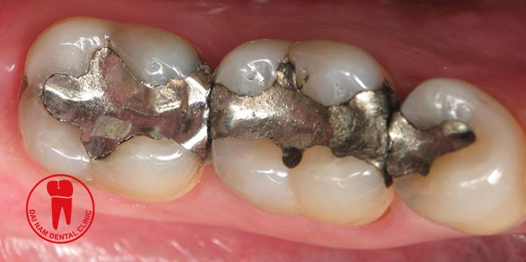 Trám răng Almagan
