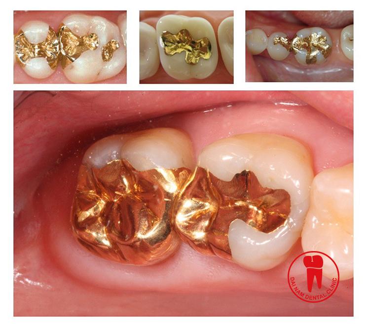 Trám răng kim loại quý