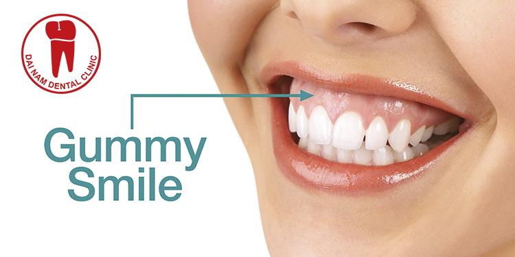 Cười hở lợi do xương hàm dày