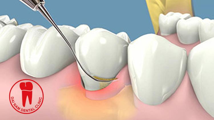 Cạo vôi răng giúp răng trở nên trắng sáng hơn