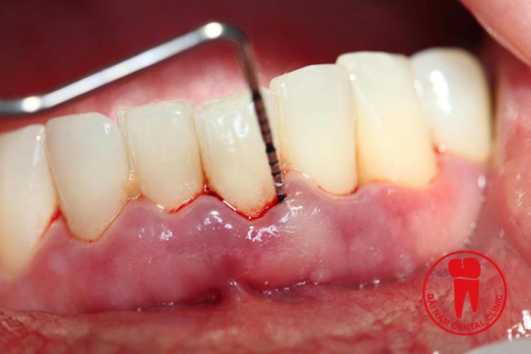 Cạo vôi răng giúp giảm thiểu các bệnh về răng miệng như
