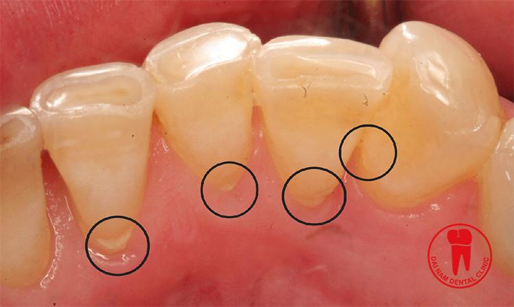 Giúp chân răng không bị tụt nướu