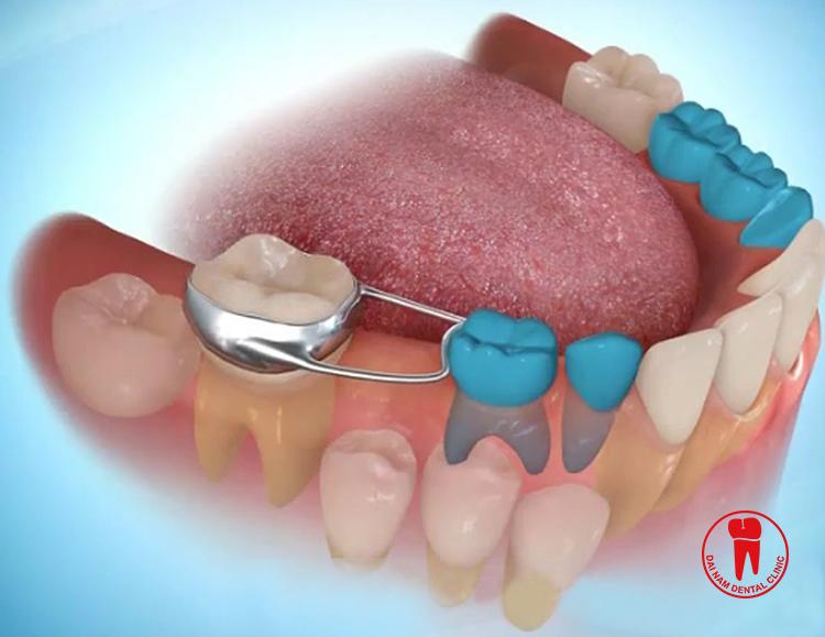 Nên nhổ ngay khi răng sữa bị lung lay do răng vĩnh viễn chuẩn bị mọc