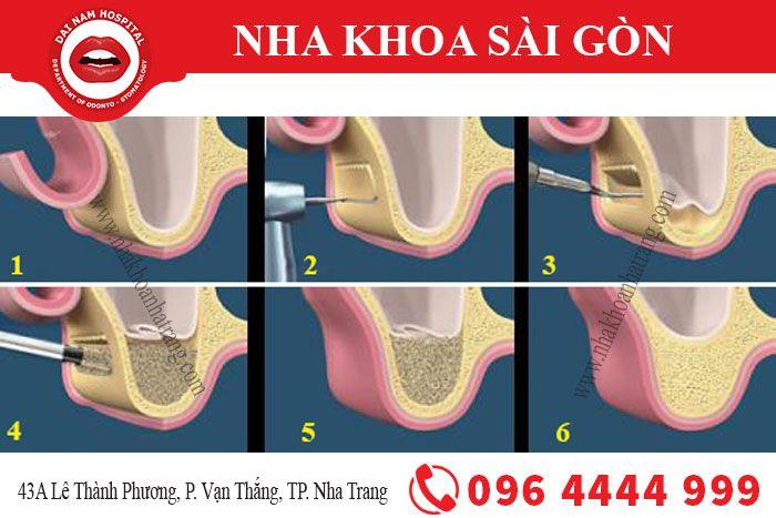 Quy trình ghép xương trong cấy ghép implant