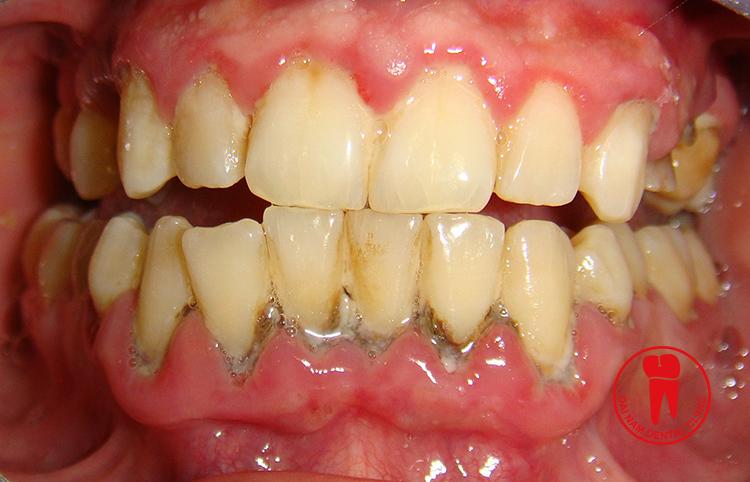 Vôi răng tích tụ quá nhiều