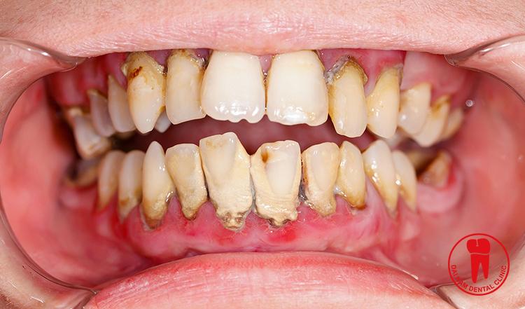 Viêm nha chu nặng khiến cấu trúc răng bị tổn thương