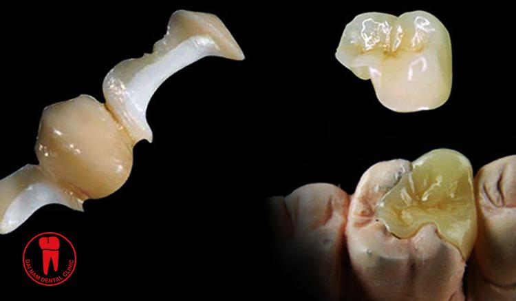Phương pháp trám răng onlay
