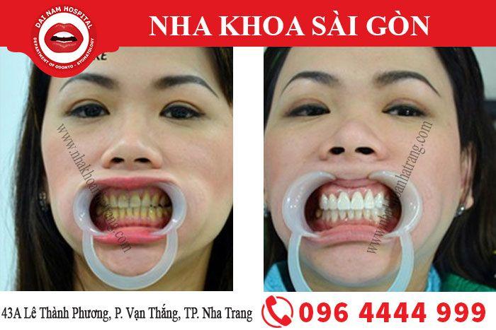 Tẩy trắng răng tại Nha khoa Sài Gòn