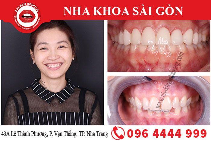 Khách hàng trước và sau khi niềng răng