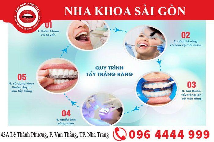Quy trình tẩy trắng răng tại Nha Khoa Sài Gòn